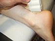 УЗИ суставов у детей старше года и взрослых