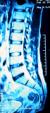 УЗИ позвоночника и спинного мозга у детей до года